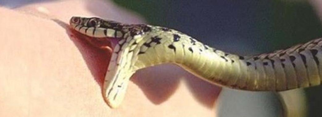 На Перемишлянщині чоловік потрапив в кому через укус змії