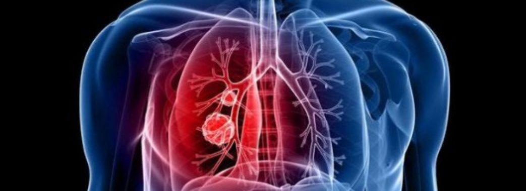 Фахівці створили онлайн-опитування для виявлення симптомів туберкульозу в українців