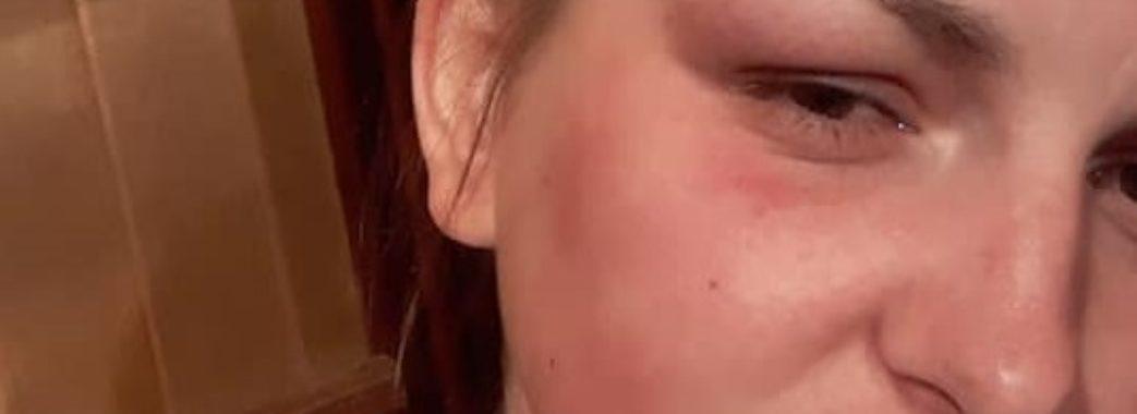 У Львові троє чоловіків напали на жінку