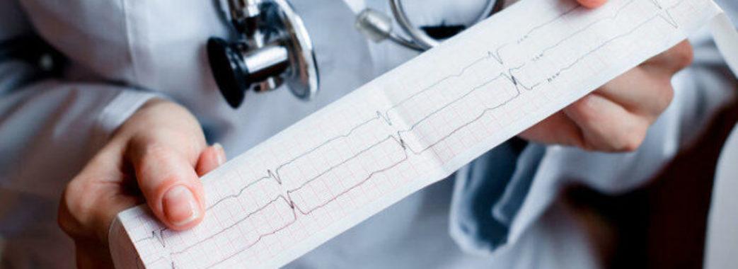 В жовтні Самбір закупить нові кардіографи