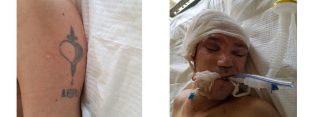 Познущалися до втрати свідомості: поліція просить допомогти встановити особу побитого чоловіка