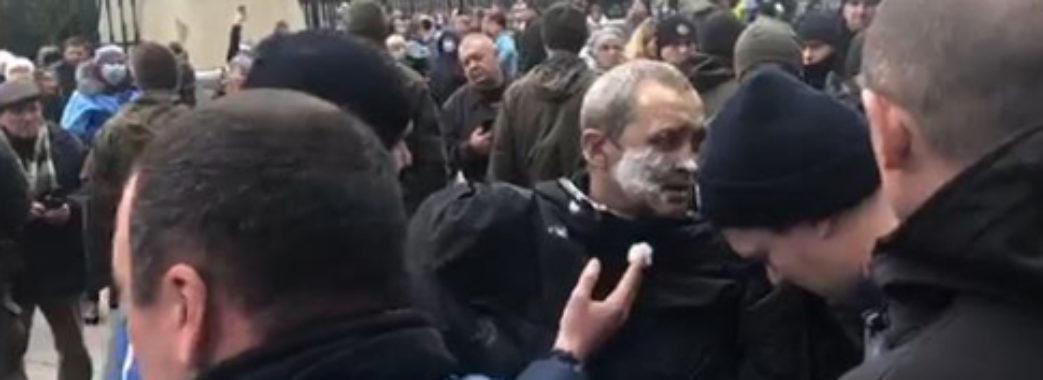Під Офісом президента чоловік зі Сумщини підпалив себе
