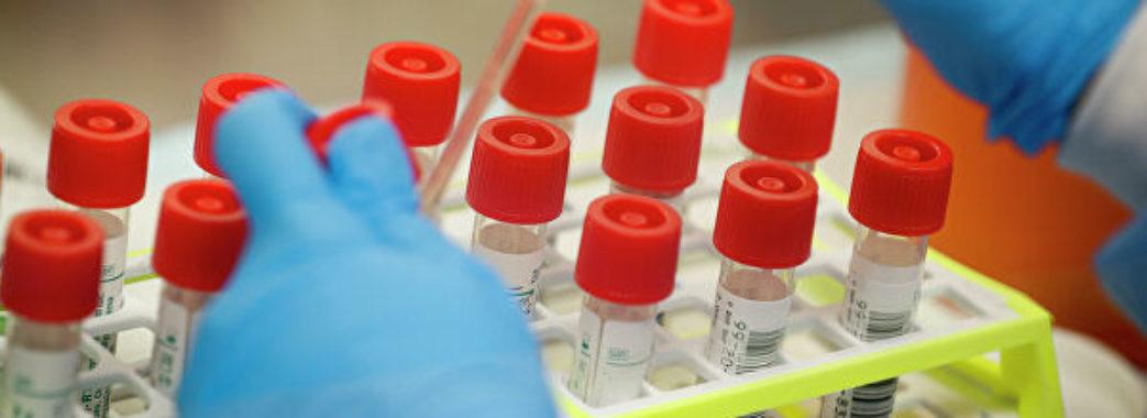 Майже півтисячі: оновлена статистика щодо хворих на коронавірус в Україні