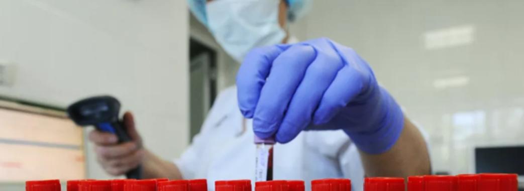 Уже 14: на Львівщині нові підозри на коронавірус
