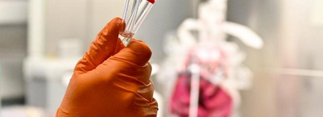 На Миколаївщині у військовослужбовця випадково виявили коронавірус