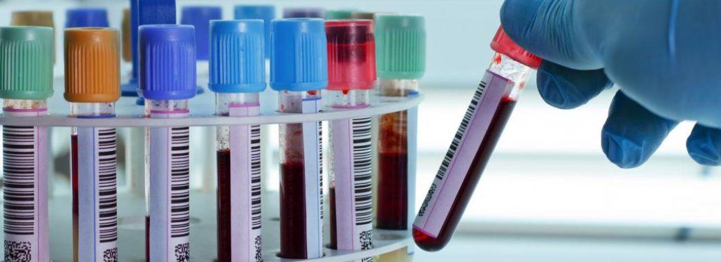 COVID-19: понад 500 нових випадків в Україні, майже 700 інфікованих на Львівщині