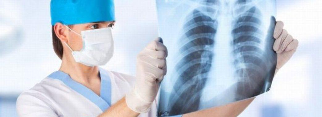 За місяць в Україні вдвічі зросла захворюваність на пневмонію