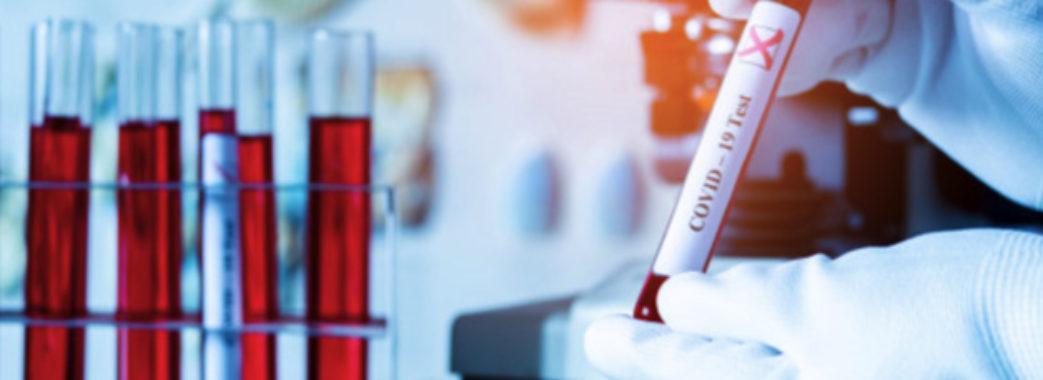 На Сокальщині 26 випадків зараження COVID-19 за добу: дані щодо захворюваності у районах