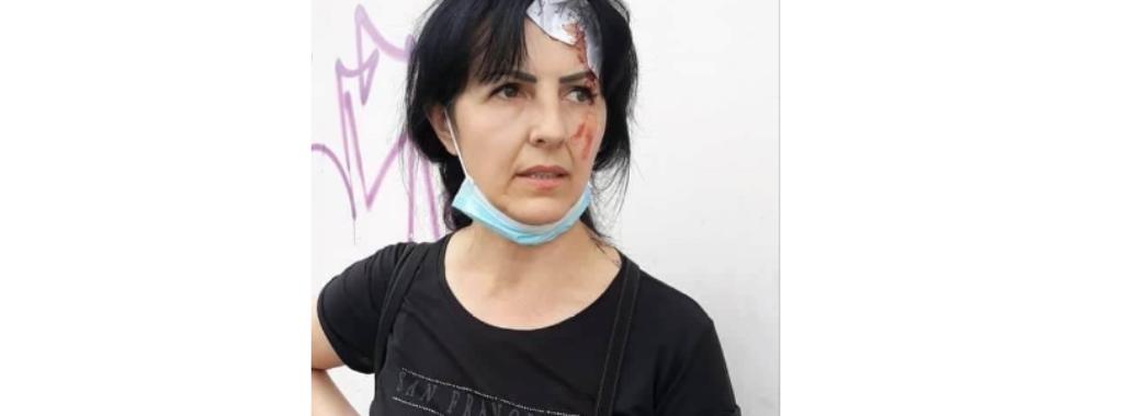 У Львові роми напали на жінку, яка завадила їм вчинити крадіжку