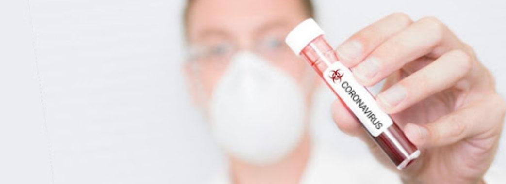 На Львівщині виявили ще понад сто інфікованих: звідки хворі