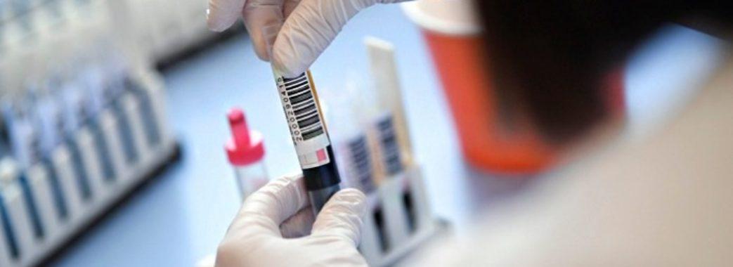 На Львівщині за добу зробили рекордну кількість ПЛР-тестувань: звідки нові хворі