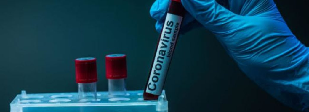 У понад 200 мешканців Львівщини цієї доби підтвердили коронавірус: звідки хворі