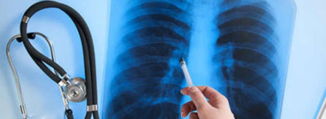 В Україні за місяць виявили понад 1,5 тисячі випадків туберкульозу