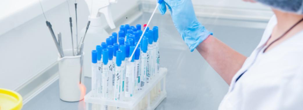 В Україні розроблять тест, який відрізнятиме грип від коронавірусу