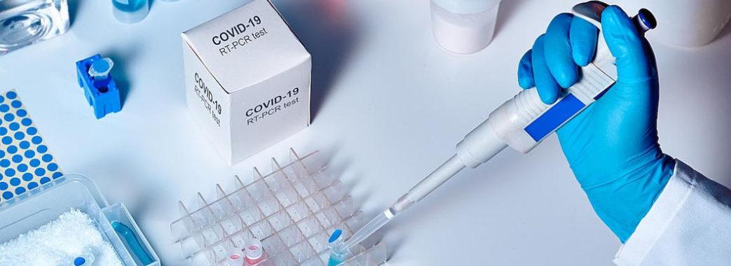 У 275 мешканців Львівщини цієї доби виявили коронавірус: звідки хворі