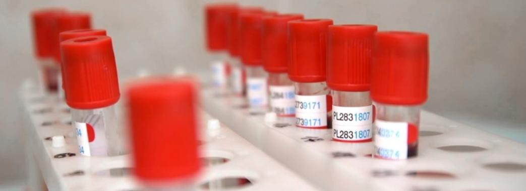 За добу на Львівщині зафіксували 343 випадки зараження коронавірусом: звідки хворі