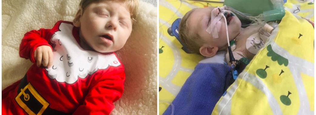 «Легені вражені на 80%»: для порятунку життя дворічного хлопчика зі Стрийщини потрібні донори крові