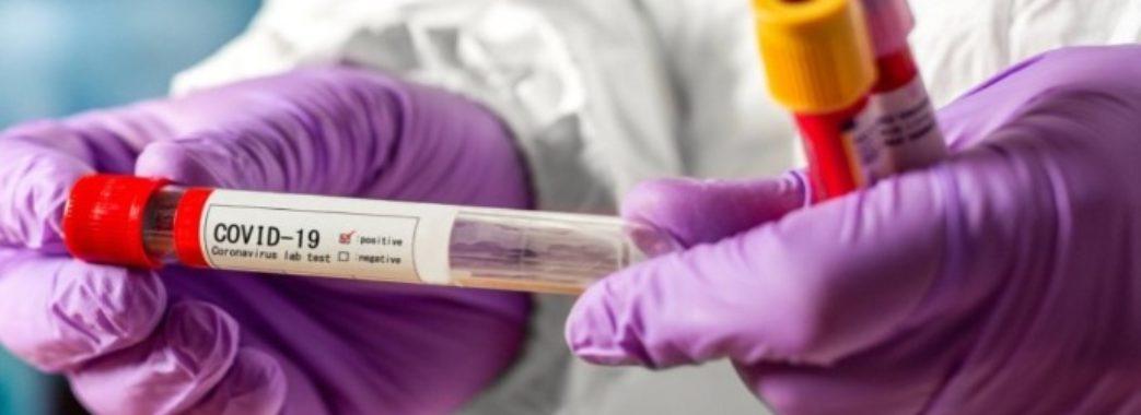 У Львівській області за добу провели всього 204 дослідження на COVID-19: звідки нові хворі
