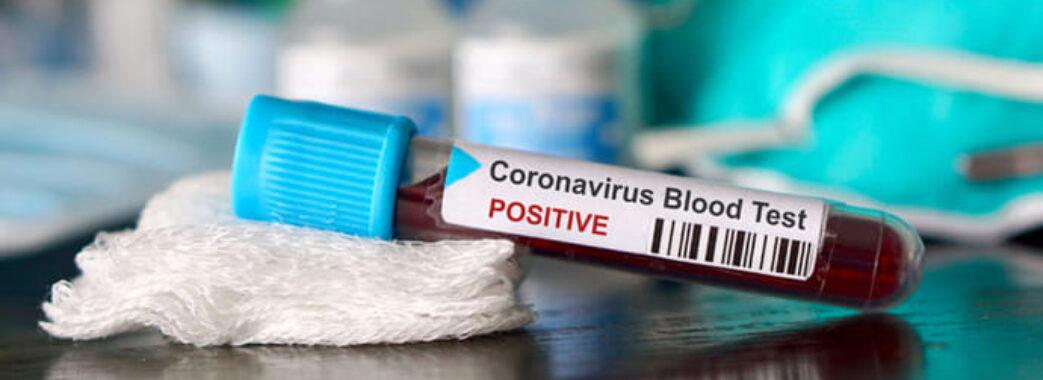 Ще шестеро мешканців Львівщини не змогли побороти коронавірус: свіжа статистика