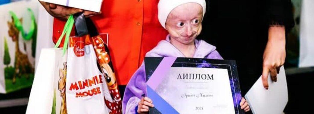 Уночі не стало єдиної в Україні дитини зі синдромом передчасного старіння